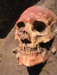 Bronze Age Skull