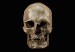 Human skull1